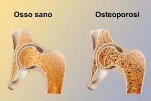 osteoporosi19141014_ml
